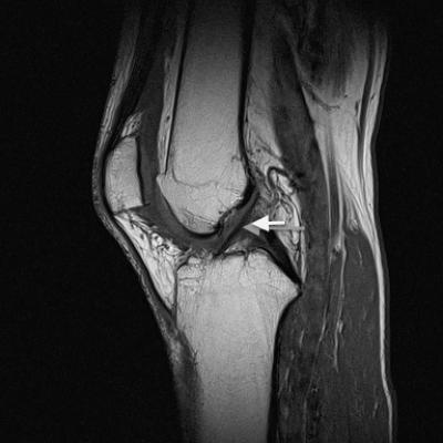 The posterior cruciate ligament can easily be recognized in MRT