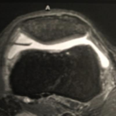 The MRI examination shows a clearly extended plica