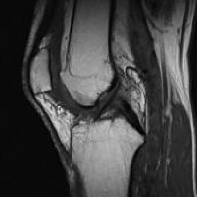 Via MRT the anterior cruciate ligament can be demonstrated very well